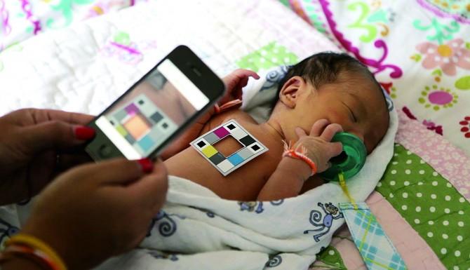 색상표와 아기의 피부색을 비교해 빌리루빈 수치를 예측하는 빌리캠. - University of Washington 제공