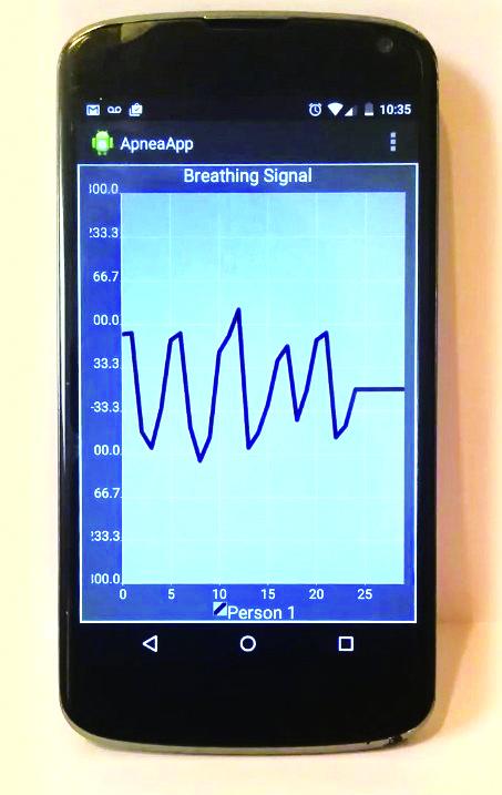 스피커와 마이크를 음파탐지기처럼 이용해 자는 동안 가슴 움직임을 측정해 수면 중 무호흡을 찾아내는 애프니어앱. - University of Washington 제공