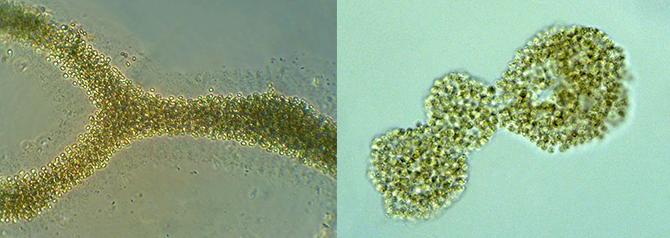 4대강과 중국 타이후 호의 녹조 중 하나인 마이크로시스티스의 모습. - Landcare Research 제공
