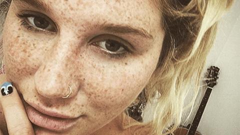 얼굴 주근깨를 공개한 유명 미국 가수