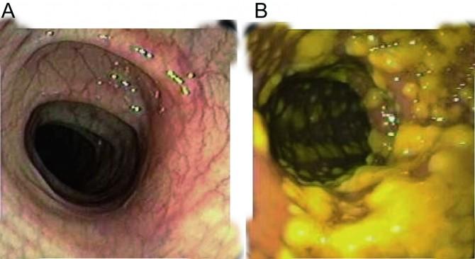 건강한 장은 선홍색이지만(왼쪽), 위막성대장염에 걸린 장은 누런 고름이 잔뜩 생긴다. - Nature Microbiology 제공
