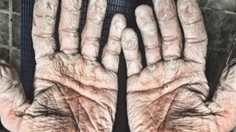 북극 바다의 고통과 싸운 남자의 손