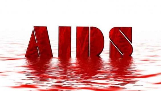 에이즈 거의 완벽하게 예방하는 백신 후보물질 개발