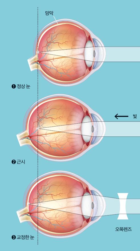 근시는 안구가 길어지는 병 근시는 안구가 커지면서 앞뒤로 길쭉해지는 병이다. 이 경우 눈으로 들어온 빛이 망막에 이르기 전에 앞에 맺힌다(➋). 보통 오목렌즈 안경으로 빛의 굴절각을 키워서 상이 망막에 맺히도록 조절한다(➌). - GIB 제공