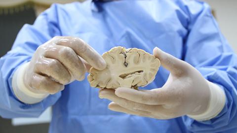 우라늄, 뇌, 종자…인류 미래 저축하는 '과학 은행'