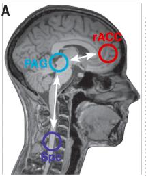 약물이 비쌀수록 플라시보 효과나 노세보 효과도 더 큰 것으로 알려져 있다. 최근 독일의 연구자들은 비싼 약물 치료를 받았을 때 부작용에 대한 노세보 효과가 더 큰 이유를 설명하는 뇌의 활동을 포착했다. 이에 따르면 전두엽의 rACC와 뇌간의 PAG, 척수가 관여해 통증이 증폭된다. - 사이언스 제공