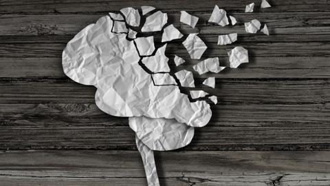 알츠하이머성 치매, 발병 전 진단 기술 나왔다
