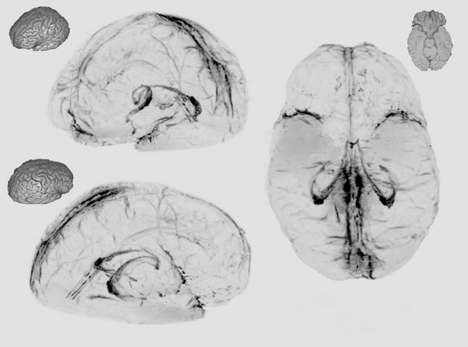 최근 미국 과학자들이 뇌에도 림프관이 있다는 사실을 밝혀냈다. 뇌 안에 생긴 노폐물은 이 림프관을 통해 배설된다. 사진은 뇌를 자기공명영상(MRI)으로 촬영한 것이다. - NIH 제공