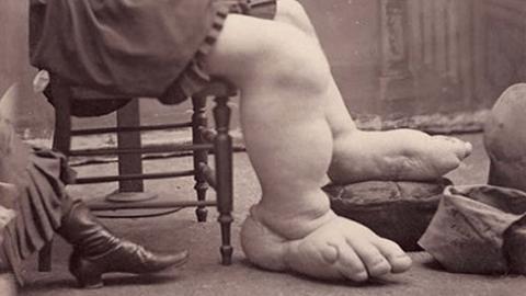 45cm 길이 발을 가졌던 여성