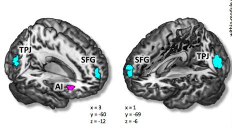 18~60세 남녀 309명의 fMRI 데이터를 분석한 결과 지능이 높은 사람들은 앞뇌섬엽(AI)의 모듈 간 네트워크가 활발한 반면 상전두회(SFG)와 측두-두정 연접부(TPJ)의 모듈 간 네트워크는 오히려 약한 것으로 드러났다. - 사이언티픽 리포트 제공