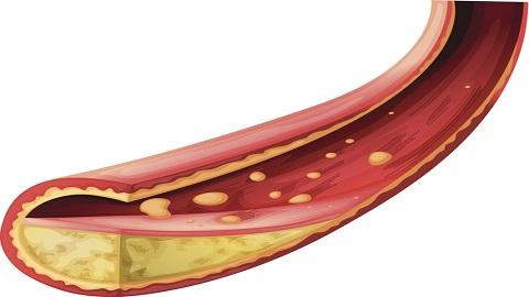 동맥경화 발생과정, 혈관 구조 재현한 '오간온어칩'으로 밝혀
