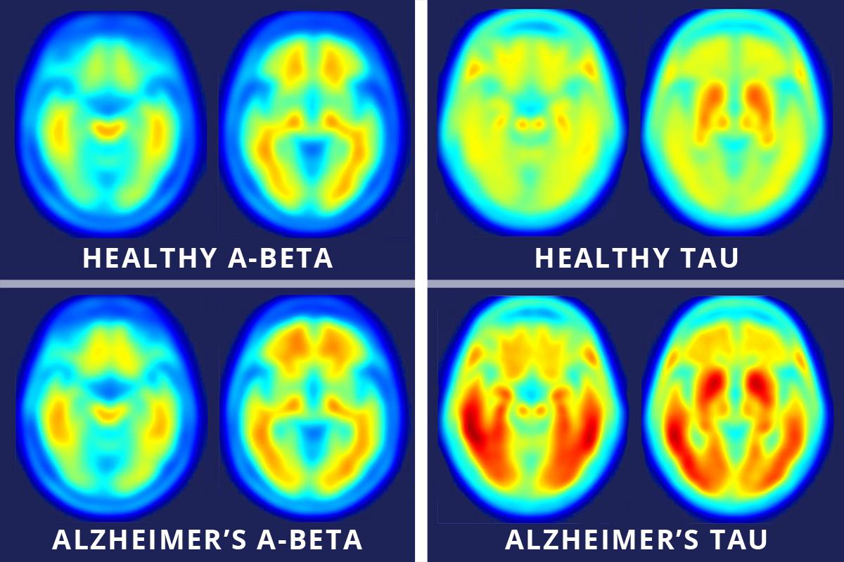 미국 워싱턴대 연구팀이 치매에 걸린 사람의 뇌(아래)와 걸리지 않은 사람의 뇌를 양전자방출단층촬영(PET)으로 촬영한 영상을 공개했다. 왼쪽은 아밀로이드 베타 단백질, 오른쪽은 신경세포 안의 타우 단백질을 측정한 영상이며 붉은색일수록 양이 많은 것이다. 양쪽 모두 치매 환자에게서 많이 발견된다.