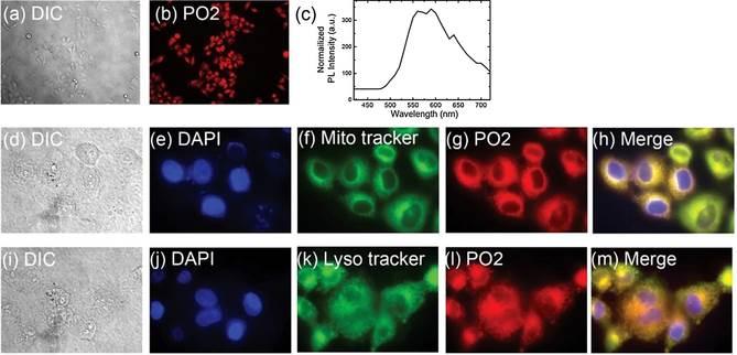 연구진이 발표한 형광 이미지. 높은 점도를 갖는 세포 내 소기관이 진한 색깔로 두드러져 보인다. - GIST 제공