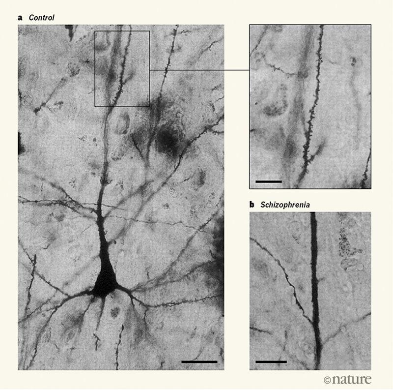 왼쪽은 건강한 뇌의 뉴런으로 위의 네모 안을 확대한 오른쪽 위 사진을 보면 검은 줄(수상돌기)의 표면에 도돌도돌 솟아난 수상돌기 가시가 보인다. 수상돌기 가시는 시냅스 수를 나타내는 지표다. 오른쪽 아래는 조현병 환자의 뉴런으로 수상돌기에 가시가 훨씬 적다. - '신경학 신경외과 정신의학 저널' 제공