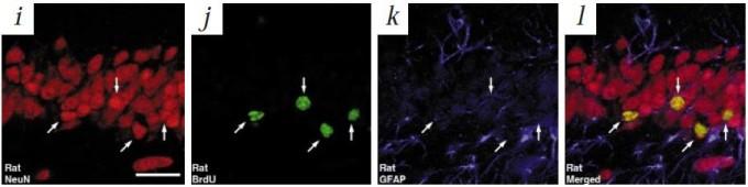 1998년 미국 소크연구소 프레드 게이지 박사팀은 암으로 죽은 성인 5명의 뇌를 조사한 결과 해마의 치상회에서 신경생성이 일어났음을 확인했다. 맨 왼쪽부터 성숙한 뉴런(빨간색), 미성숙 뉴런(BrdU 표지(녹색). 화살표가 가리키는 세포 네 개), 미성숙 뉴런(GFAP 표지)이고 맨 오른쪽은 세 이미지를 합친 것이다. 이 논문은 지금까지 6300회 인용됐다. - '네이처 의학' 제공