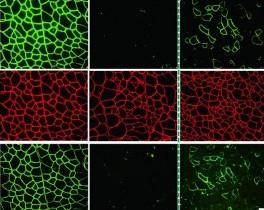 DNA서 염기 하나만 바꿔… 근위축증 앓는 생쥐 고쳤다