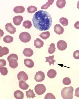 화살표가 가르키는 적혈구가 유극적혈구다. 적혈구 막에 짧은 돌기가 나 있는 모습을 확인할 수 있다. - flickr 제공