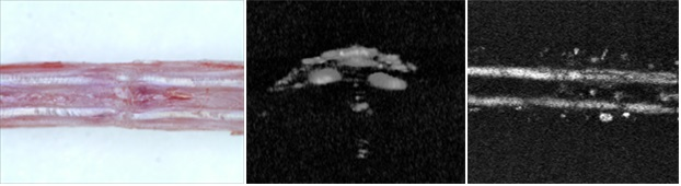 광주과학기술연구원(GIST) 연구진이 실험용 쥐의 꼬리 힘줄을 2차원 광음향 단층 촬영한 영상(가운데)과 3차원 광음향 영상(우). 피부를 제거한 촬영한 실제 사진(왼쪽)과 비교해 보아도 또렷하게 환부를 확인할 수 있다. 광주과학기술원 제공.