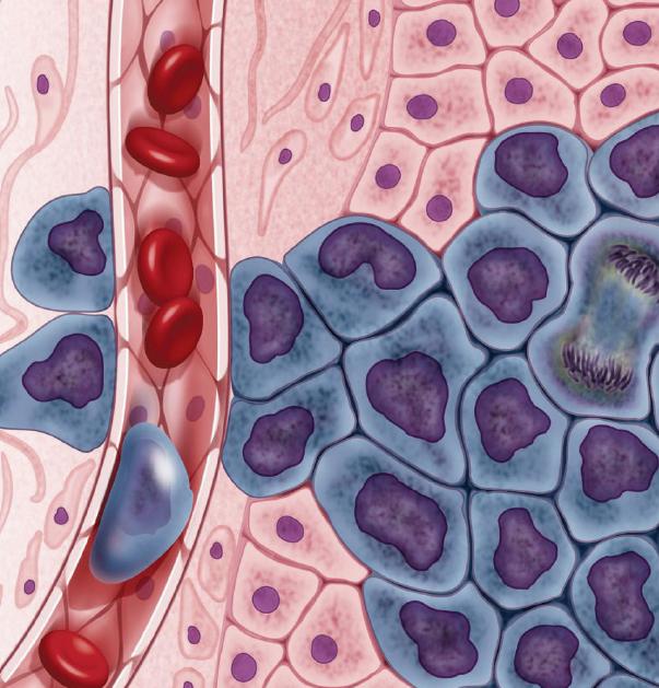 건강한 세포(분홍색)로 둘러싸인 성장하는 암세포(보라색)가 혈관을 통해 다른 신체 기관으로 이동하고 있다. - 셀(Darryl Leja, NHGRI) 제공