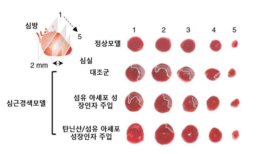 탄닌산과 섬유아세포 성장인자를 함께 주입한 쥐의 경우, 심근경색이 일어난 부위(하얀색 점선)가 빠른 속도로 감소하고 있는 것을 확인할 수 있다.-KAIST 제공