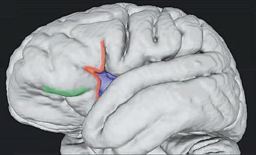 현대인 두뇌의 절반 크기 '초기인류 뇌' 미스터리 풀다
