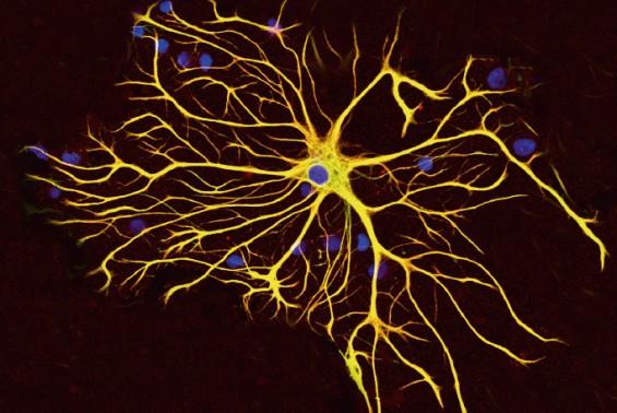 별세포 활성 떨어지면 운동 능력은 향상