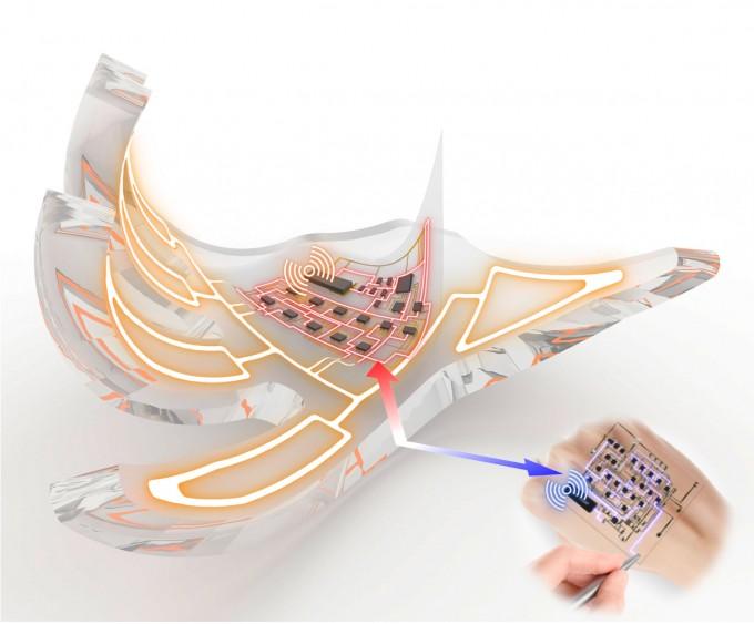이해를 돕기 위해 연구진이 컴퓨터 그래픽으로 만든 이미지. 사람의 손 모양으로 만든 소프트 로봇에 전자피부를 붙여두고 조작하고 있는 모습.  서울대 공대 제공.