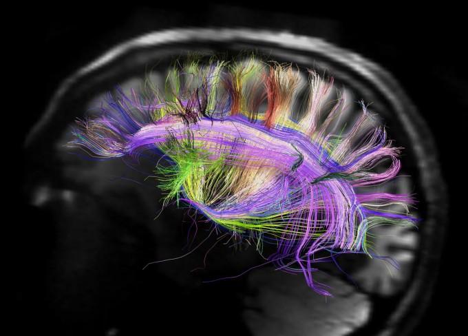 미국에서 종료된 뇌지도 프로젝트 휴먼커넥톰프로젝트는 뇌신경세포 하나하나의 연결망을 파악하려는 시도였다. 이런 뇌지도는 세계 곳곳에서 시도되고 있지만, 아직 갈 길이 멀다. -사진제공 휴먼커넥톰프로젝트-미국국립보건원