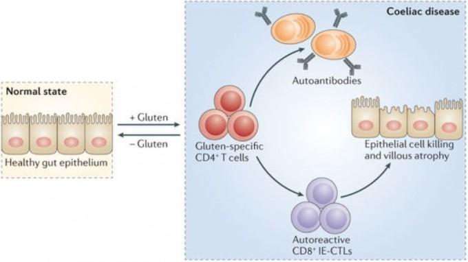 유전적 요인이 있고 소장벽을 이루는 세포 사이가 느슨할 경우 밀가루 음식을 먹으면 글루텐이 틈 사이로 투과해 자가면역반응을 일으켜 소장벽 세포를 파괴한다. 그 결과 영양결핍과 설사 등의 증상이 나타나는 게 셀리악병이다. 많은 경우 글루텐이 없는 음식을 먹으면 증상이 사라진다. - '네이처 리뷰 면역학' 제공