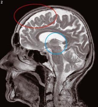 붉은 원이 전두엽 - 사진 과학동아 제공