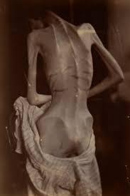 식이장애를 앓고 있는 환자의 뒷모습. 식이장애는 불과 백년 전만 해도 거의 존재하지도 않는 질병이었다. - 위키미디어 제공