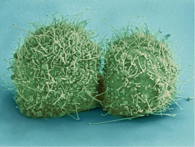 유명한 인간 유래 세포인 헬라(HeLa) 세포는 미국에 살았던 여성 헨리에타 랙스의 암 조직에서 나왔다. 실험에 쓰이는 세포가 성별 등 인체의 특성을 담고 있다는 사실은 지금까지 무시돼 왔다. 학자들은 이제라도 고려해서 실험을 해야 한다고 입을 모은다. -사진 제공 미국국립보건원(NIH)