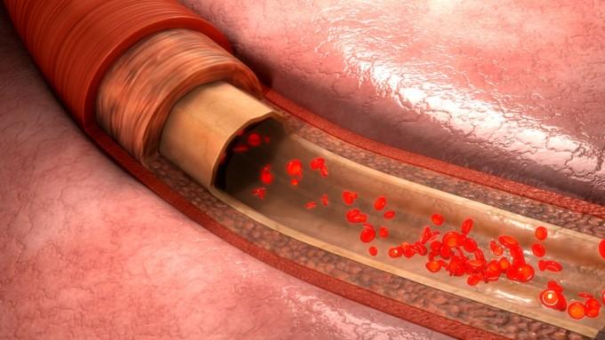 국내 연구진이 동맥경화 환자의 '고지혈' 증상이 루푸스를 유도한다는 사실을 알아냈다 - 사진 GIB 제공