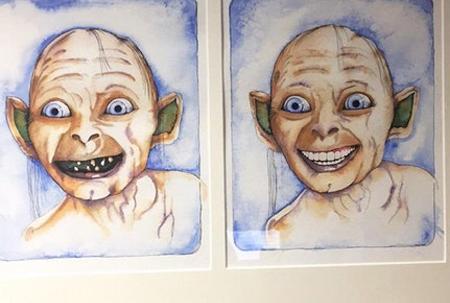 치과 의사의 유머 감각