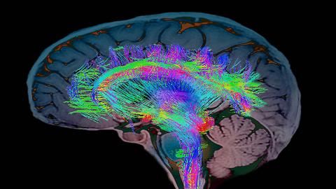 사람 뇌는 왜 커졌나? 사회성 vs 환경적응 vs 유전자 이론 각축
