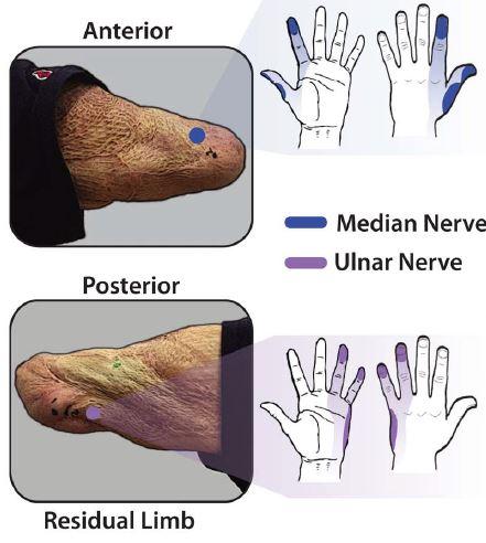 패혈증으로 조직이 괴사해 절단한 왼팔 말단에서 환상 손에 해당하는 지도를 만들었다. 위는 앞쪽으로 정중신경(median nerve)은 환상 엄지와 검지 말단을, 척골신경(ulnar nerve)은 그 사이를 담당한다. 아래는 뒤쪽으로 환상 약지와 새끼손가락을 담당한다. - '사이언스 로봇공학' 제공