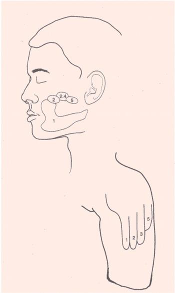 1990년대 초 라마찬드란 박사는 사고로 왼팔을 잃은 사람을 대상으로 얼굴과 팔죽지에서 손에 해당하는 부위를 찾았다. - '브레인' 제공