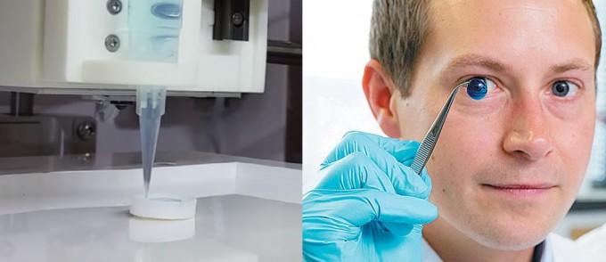 사람의 각막 줄기세포를 3차원(3D) 프린팅하고 있는 모습(왼쪽). 연구진이 파란색으로 염색한 인공 각막을 들어 보이고 있다. - 영국 뉴캐슬대 제공