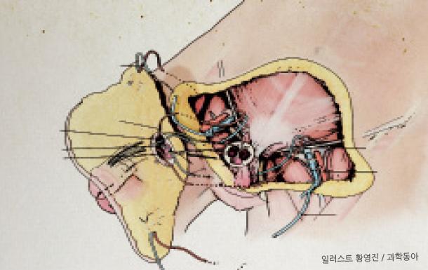 음경 및 주변 조직 이식 수술 : 요도를 먼저 연결하고, 음경해면체와 요도해면체를 접합한다. 이후 심부 동맥과 정맥, 신경을 연결해 혈액 순환을 만든다. 마지막에 표피의 동맥과 정맥을 이어 붙인다.