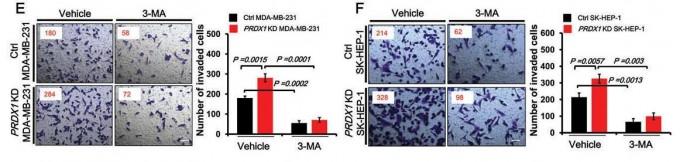 성균관대 연구진의 논문 중 일부. 퍼록시리독신1 을 제거한 암세포를 제작해 실험한 결과, 관련 성분이 자가 소화작용 형성을 조절하여 암세포 침입에 영향이 있음을 확인했다.