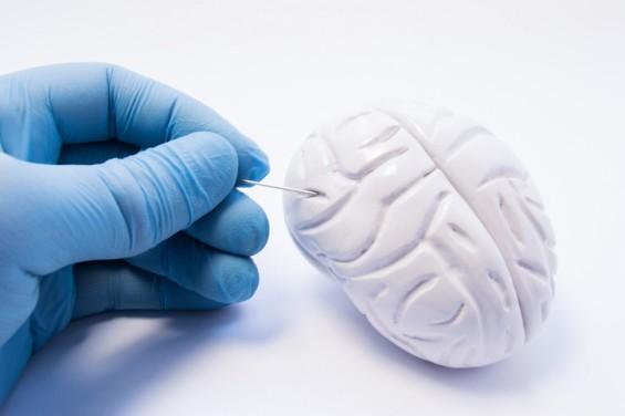 """악성 뇌종양 발병 부위 찾았다...""""암 조직에서 먼 부위에서 최초 발생"""""""