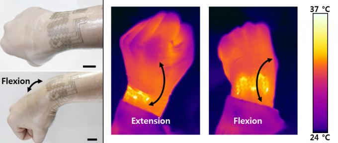 금-은 나노복합체 전도성 고무를 활용한 웨어러블 의료 기기. 혈액순환을 도와 손이 전체적으로 따뜻해졌다(오른쪽). - IBS 제공