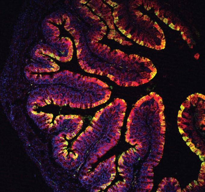 면역에 중요한 역할을 하는 아릴 하이드로카본 수용체(AhR)이 없는 쥐에게 배추속에 식단을 섭취시킨 뒤 찍은 장내 모습이다. -Francis Crick Institute 제공