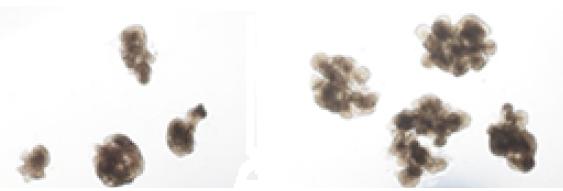 일반 체외 배양한 것(왼쪽)보다 면역인자와 함께 배양했을때(오른쪽) 소장 오가노이드가 더 크게 형성된 것을 확인할 수 있다. 연구팀은 새로 제작한 소장 오가노이드가 장조직에 피료한 4가지 대표세포를 모두포함하며 그 기능도 갖추고 있는 것을 확인했다.-한국생명과학연구원 제공