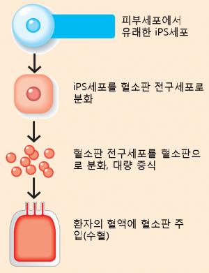 유도만능줄기(iPS)세포로 만든 혈소판을 환자의 혈액에 주입하는 과정. - 자료: 일본 교토대