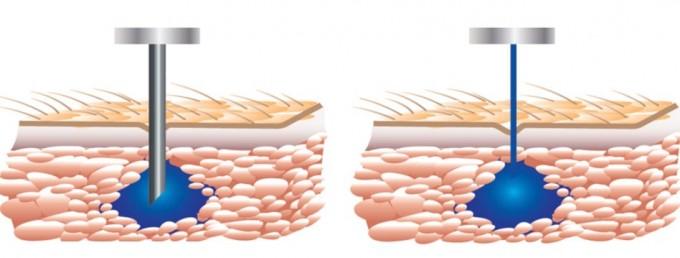 제트 주사기기(오른쪽)는 일반적인 주사기와 달리 주삿바늘이 없다. 약물을 머리카락 굵기보다 얇은 물줄기로 순간적으로(초속 200m) 내보내기 때문에 고통이 느껴지지 않는다. - 자료: 미국 매사추세츠공대(MIT)