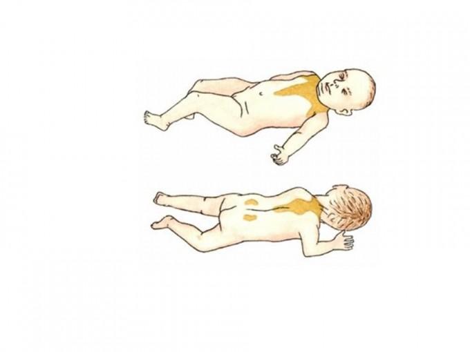 신생아는 어깨와 목 부분에 갈색 지방이 분포하여, 체온을 조절하는 역할을 한다. 그러나 나이가 들면 곧 사라진다. 특정한 생애기간에만 존재하는 진화적 형질을 개체발달적 적응 현상이라고 한다. - FLICKR 제공