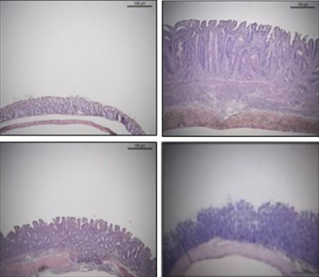 장내 미생물로 면역치료제 만든다