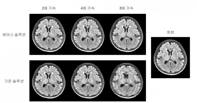 에어스메디컬이 개발한 MRI 촬영 기술. 기존 기술은 검사시간이 짧을 수록 점점 영상이 흐릿해지는데 비해 새로운 기술은 화질저하가 거의 없다. 서울대 공대 제공.