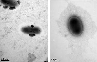이번에 발견한 슈와넬라 속 신종 미생물(왼쪽)과 클루이베라 속 신종 미생물. -사진 제공 환경부